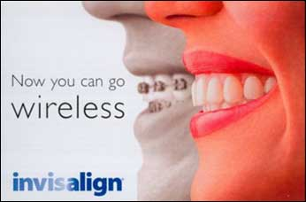 invisalign-wireless-alternative-to-braces